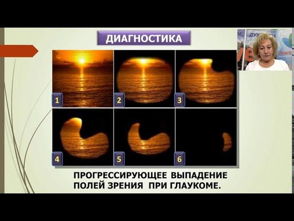 Шестой день Школы по продукции Д м н Л П Волкова Аквабиотики для здоровья глаз