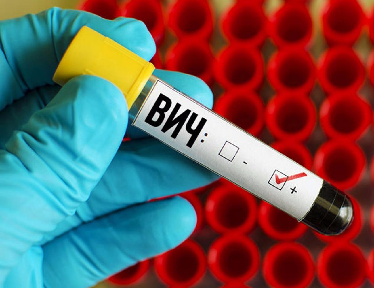 В Республике Алтай, по информации республиканского СПИД-центра, на 30 апреля 2020 года общее число зарегистрированных случаев ВИЧ-инфекции в регионе составляет — 1114.