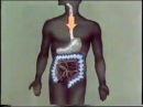 Замещение пищевода толстой кишкой © Poisoning. Replacement of the esophagus colon kishkoya