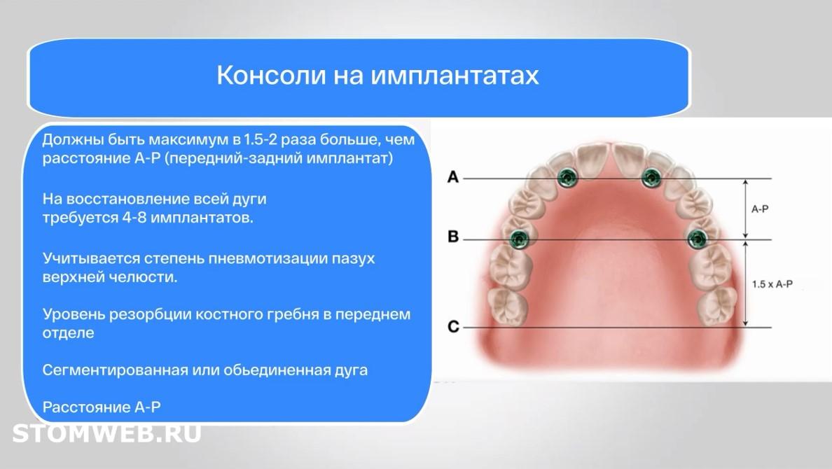 Оценка и классификация беззубых челюстей