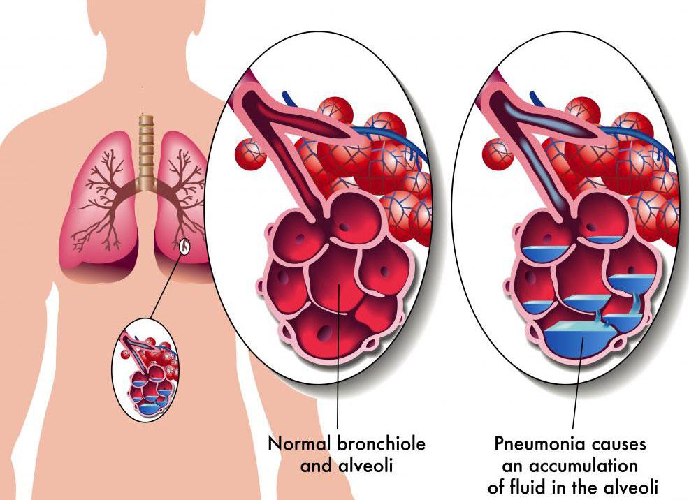 Пневмония вызывает воспаление альвеол, крошечных воздушных мешочков в легких.