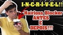 Hairloss Blocker A Prova ANTES E DEPOIS Hair Los Blocker Funciona Hairloss Blocker Depoimento