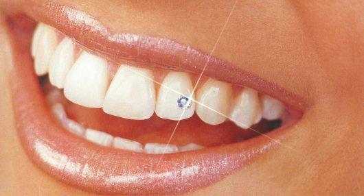 Каковы Зубные Драгоценности?