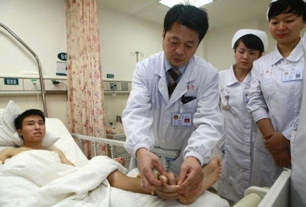 Этому молодому человеку оторвало руку Чтобы спасти конечность, ее пришлось пришить... к ногеХирурги из Китая осуществили уникальную операцию. Им удалось сохранить ампутированную кисть пациента,