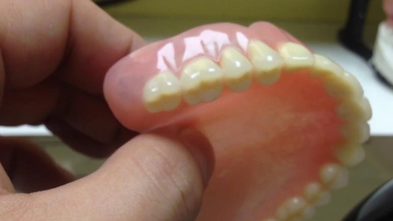 Denture Зубные протезы с замками и фрезеровкой смотреть онлайн без регистрации