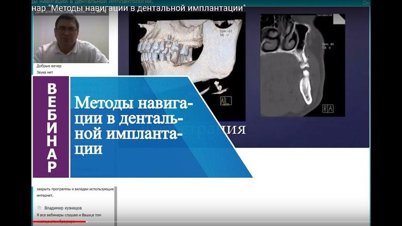 Вебинар Методы навигации в дентальной имплантации