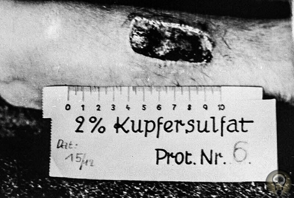 Жертва нацистского медицинского эксперимента в Равенсбрюк. Германия, 1943 год.