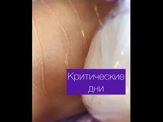 Видео от Студия Лазерной эпиляции