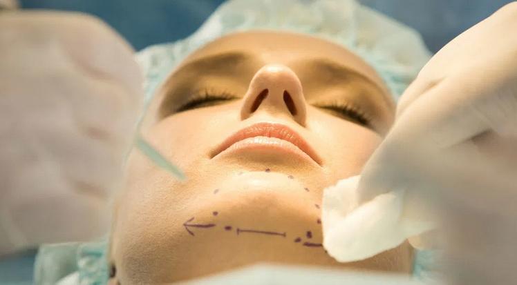 Хирургия подбородка (гениопластика)